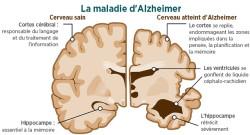 4-choses-a-savoir-pour-ne-pas-avoir-la-maladie-dalzheimer